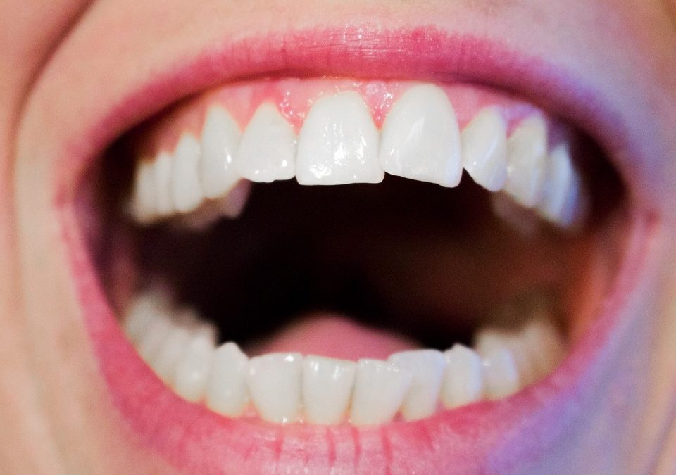 Common Dental Issues and how to prevent them